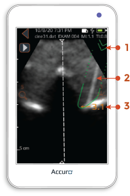 Accuro automated overlay — thoracic preset